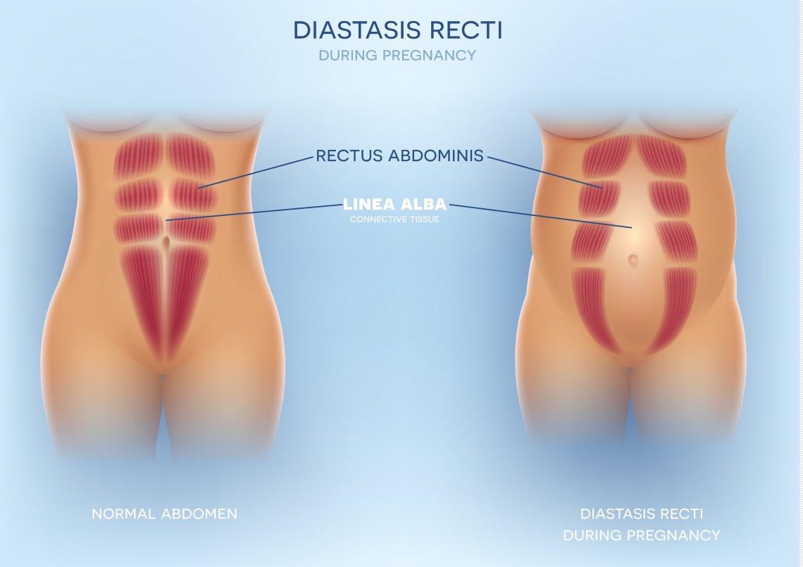 Vlivem toho se musí břišní dutina natáhnout a po porodu opět stáhnout.